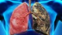 Soğuk havalar KOAH hastaları için büyük risk